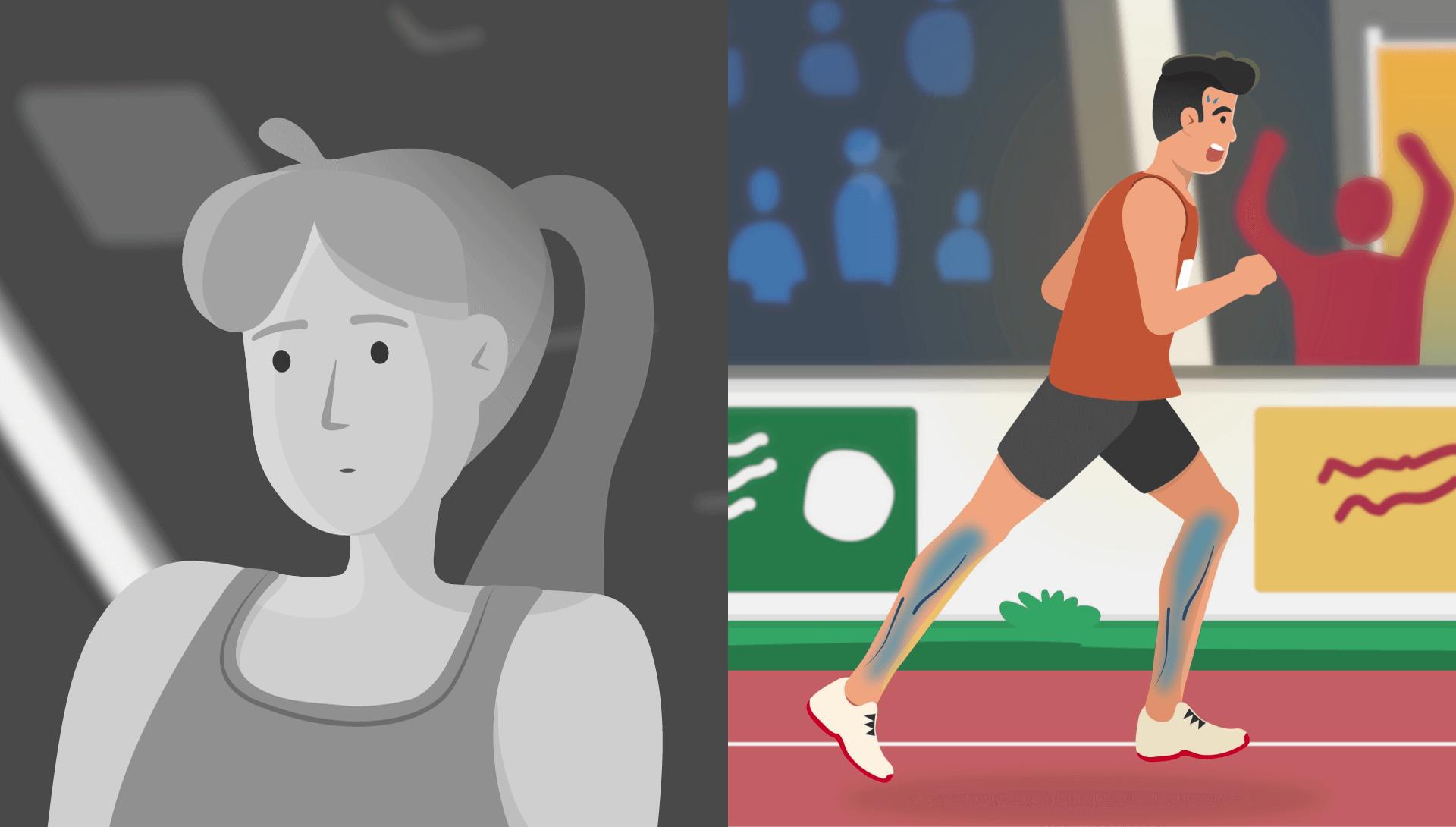 motion design anxiété